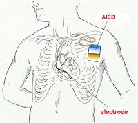 تركيب منظم ضربات القلب القلب