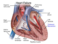 Heart damage treatment with stem cell therapy