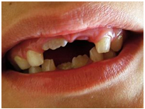 Missing teeth - Stem cell therapy