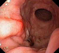 المعدة أو سرطان المعدة