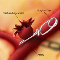 علاج تمدد الأوعية الدموية