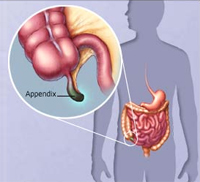 التهاب الزائدة الدودية