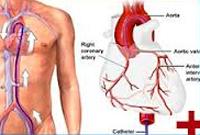 تصوير الأوعية الدموية التاجية