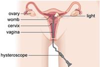 خزعة تنظير الرحم بطانة الرحم