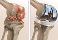 العظام / جراحة استبدال الركبة / الورك جراحة استبدال / هوب الظهور جراحة