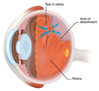 جراحة طب العيون / عين في الهند / الليزك في الهند / جراحة الساد في الهند