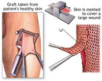 الجراحة التجميلية في الجراحة الهند / الترميمية في الهند