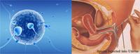 تقنية المساعدة على الإنجاب