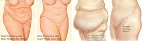 تنسيق القوام بعد فقدان الوزن الكبرى