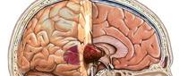 ورم الدماغ