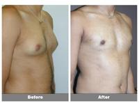 تصغير الثدي للذكور (التثدي)