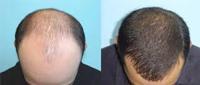 زرع الشعر