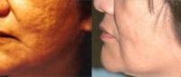 تجديد الجلد والظهور
