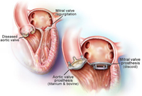جراحة استبدال صمام